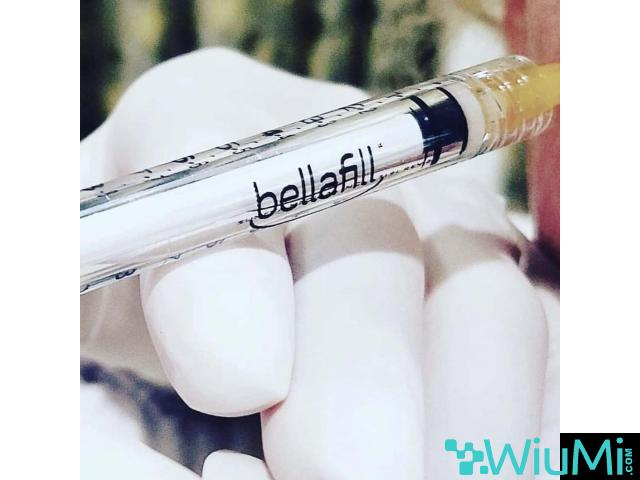 Bellafills for scars eradication - 2/5