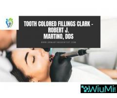 Tooth Colored Fillings Clark - Robert J. Martino, DDS