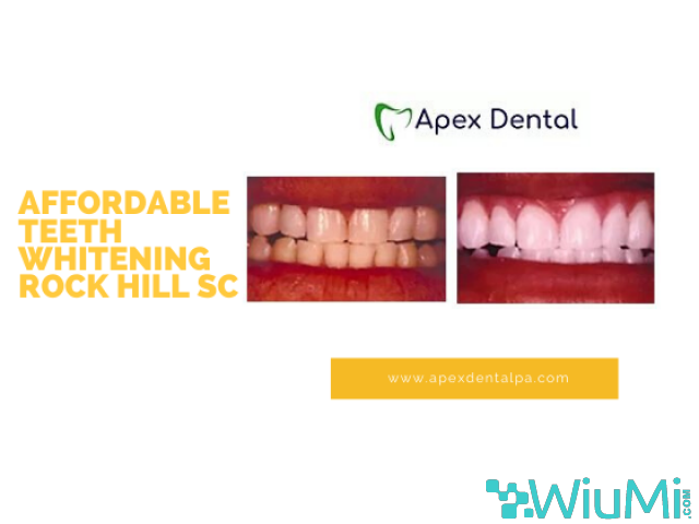 Affordable Teeth Whitening Rock Hill SC - 1/1