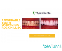 Affordable Teeth Whitening Rock Hill SC