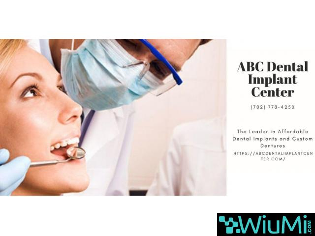 Trusted Las Vegas Dentist is Now Admits New Patients for Mini Dental Implants - 1/5