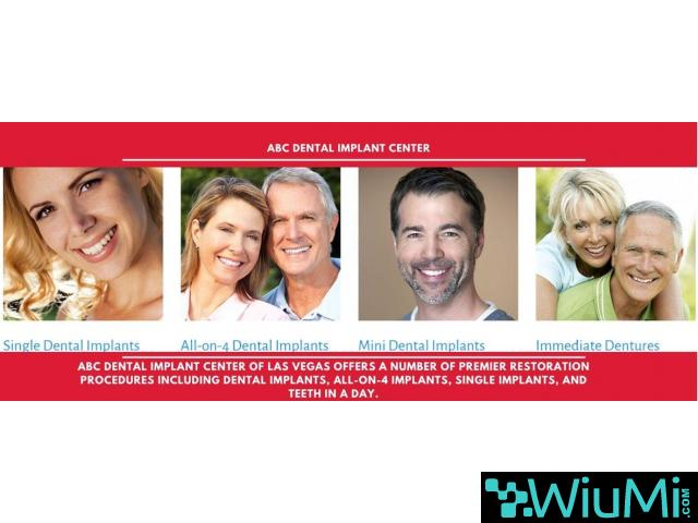 Trusted Las Vegas Dentist is Now Admits New Patients for Mini Dental Implants - 2/5