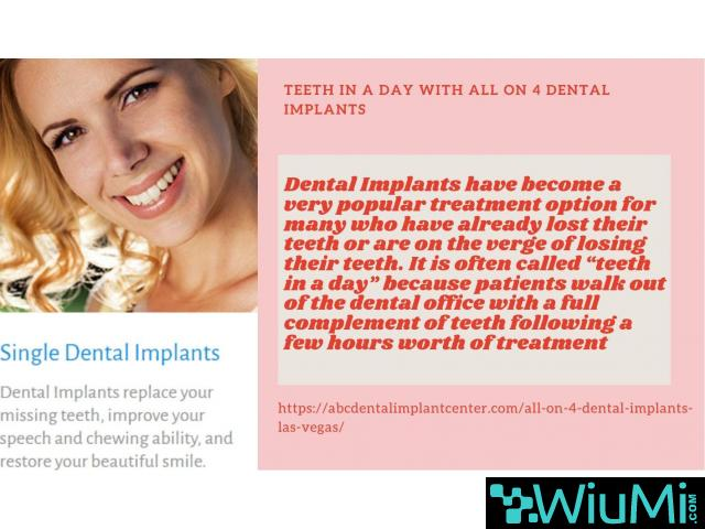 Trusted Las Vegas Dentist is Now Admits New Patients for Mini Dental Implants - 3/5
