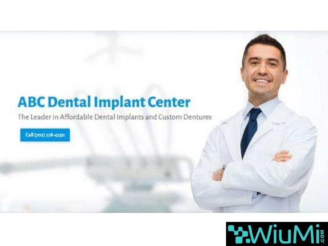 Trusted Las Vegas Dentist is Now Admits New Patients for Mini Dental Implants - 5/5