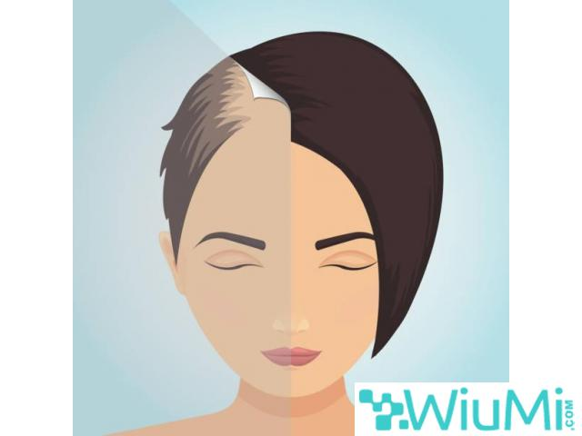 Best and Affordable Hair Transplant Clinic in London - 1/1
